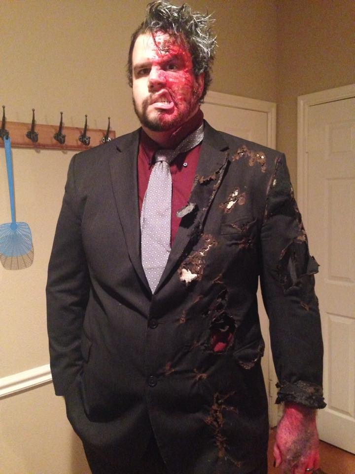 Lad With Half Of His Face Paralysed Makes Amazing Halloween Costume face1