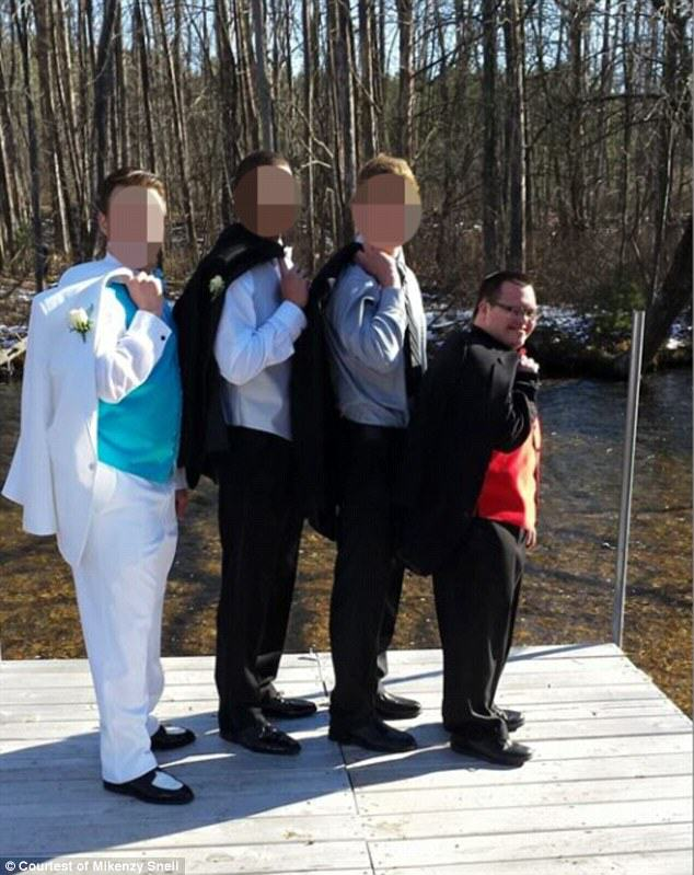 downs2 Lad With Downs Syndrome And His Prom Date Show How Its Done