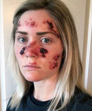 1.1 Brave Mum Shares Selfie To Show Effects Of Skin Cancer
