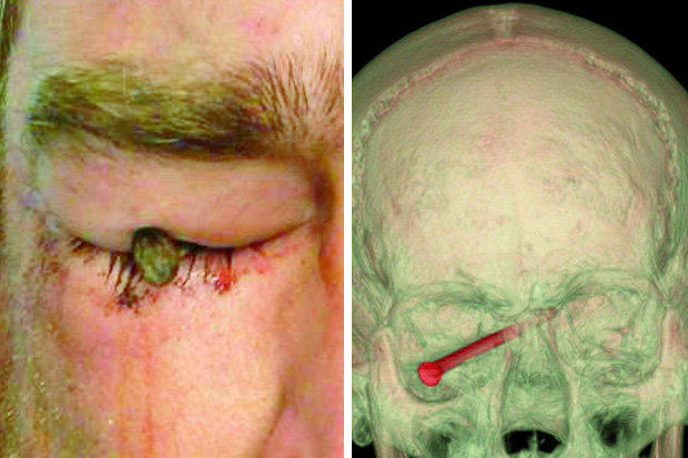 1107 This Lad Got A 3 Inch Nail Flung Through His Eyeball