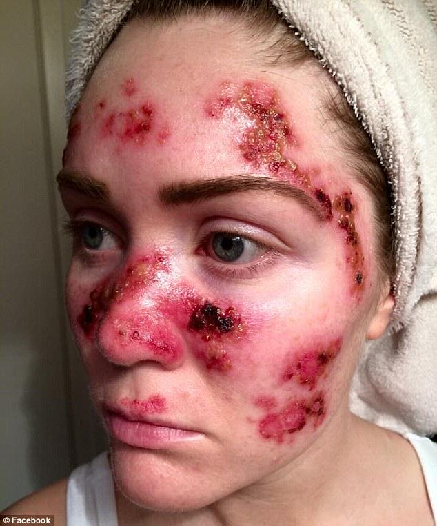 39 Brave Mum Shares Selfie To Show Effects Of Skin Cancer