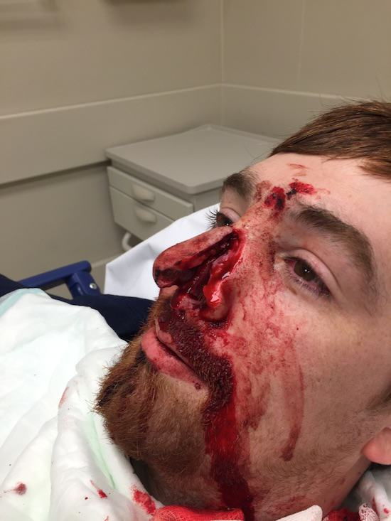 49 WARNING GRAPHIC: Man Slices Mates Nose Off With Samurai Sword At Party