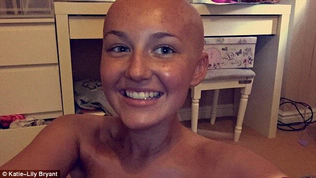 S0Es7IdDVchemo.jpg Bald Teenager Is Now More Confident After Losing Hair Because Of Cancer