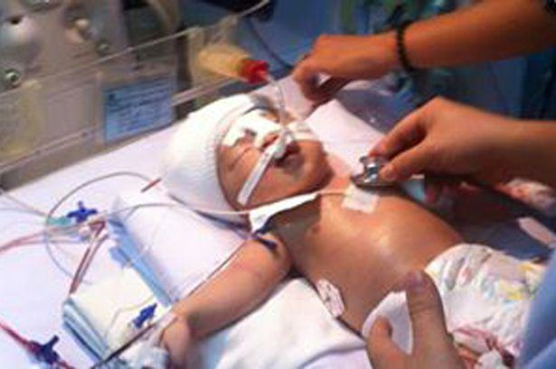 UNILAD 123 11 Day Old Baby Recovering From Pneumonia Is Stabbed In The Head With A 12 Inch Blade