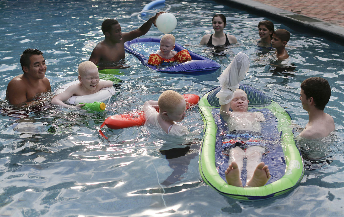 UNILAD albino44 Hunted Albino Kids From Tanzania Find Happy New Life In New York