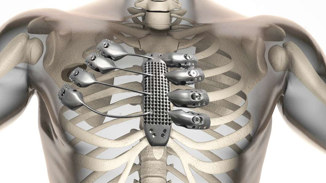 UNILAD 3d printed sternum ribs@2x4 This Cancer Patients 3D Printed Metal Rib Cage Will Outlast Us All
