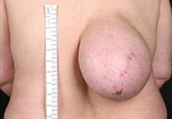 Woman Had Huge Breast Like Tumour On Her Back For More Than A Decade UNILAD bj74