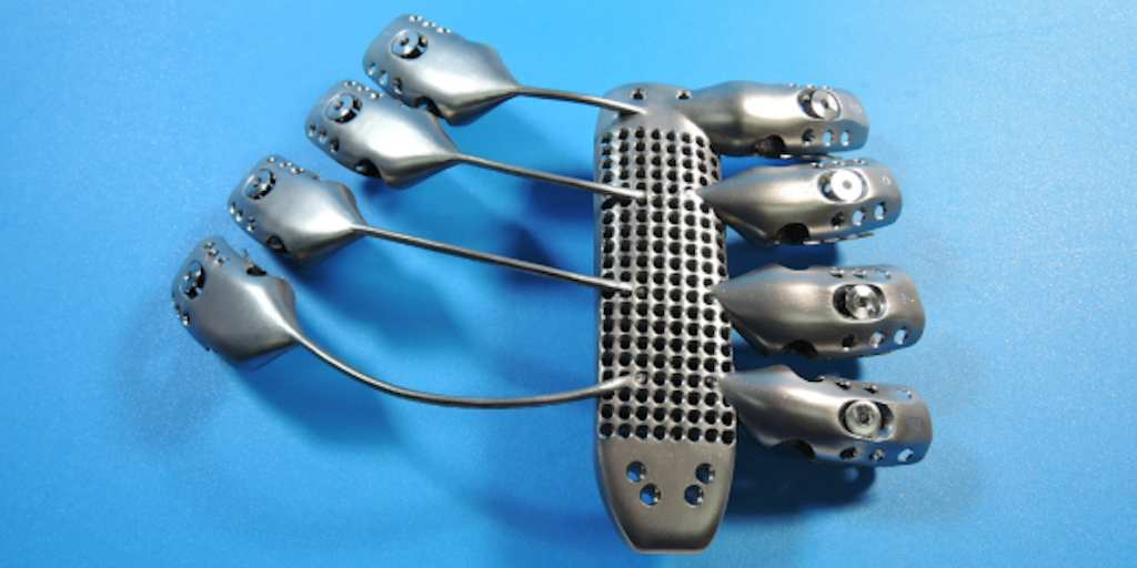 UNILAD cancer7 This Cancer Patients 3D Printed Metal Rib Cage Will Outlast Us All