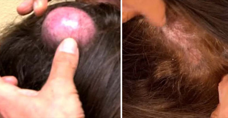 UNILAD cyst WEB 27 NOPE: Woman Gets Giant Cyst On Her Head Popped On Live TV