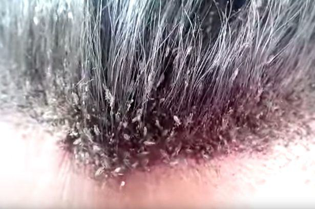 NOPE: Video Of This Guys Head Lice Infestation Will Make Your Skin Crawl UNILAD head lice 13