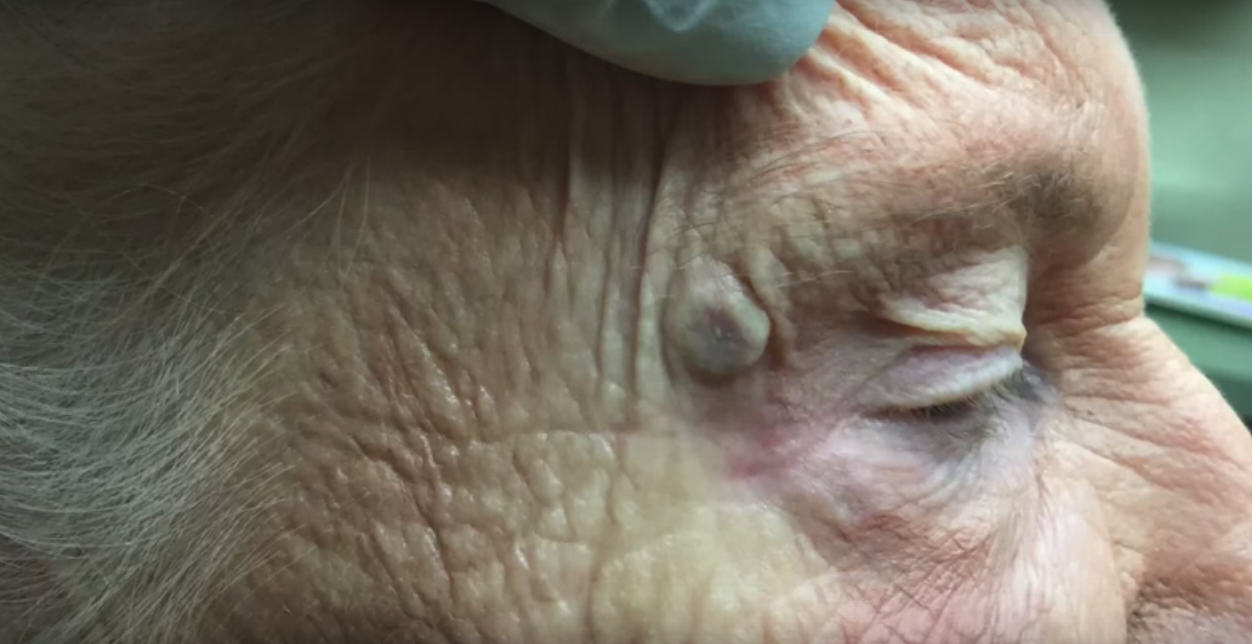 UNILAD Untitled 15 Video Of DoctorPimplePopper Popping A Massive, Disgusting Old Blackhead