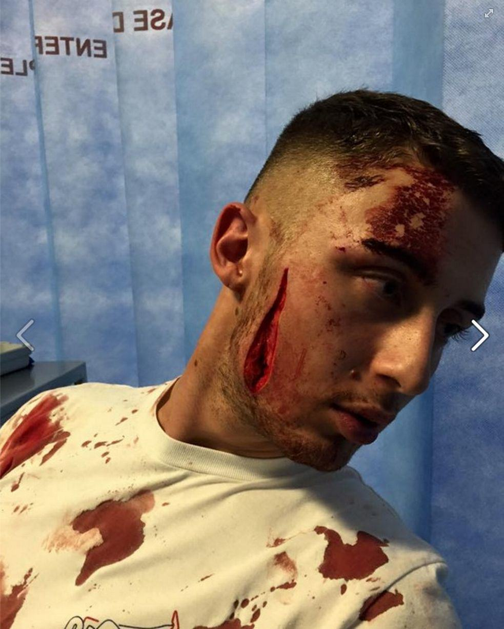 UNILAD bottle injury92294 Young Clubber Suffers Horrific Facial Wound After Being Bottled