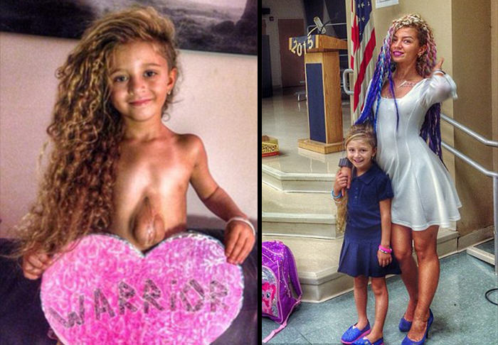 UNILAD heart girl WEB 263590 Meet The Six Year Old Girl Born With Her Heart Outside Her Chest