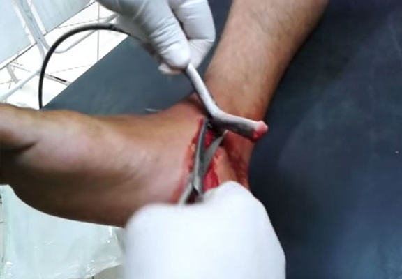 Giant Stingray Barb Removed From Guy's Foot In Gruesome Video