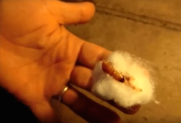 NOPE: Huge Botfly Maggot Removed From Mans Head Screen Shot 2015 11 27 at 13.39.28