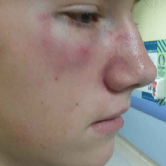 UNILAD RPY JOSH COOPER 1911007 Brutal Video Of Boy, 12, Being Battered By Bullies Goes Viral