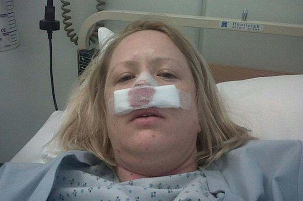 This Woman Had A Flesh Eating Disease So Horrific She Sneezed Out Her Own Septum UNILAD flesh eating 262489