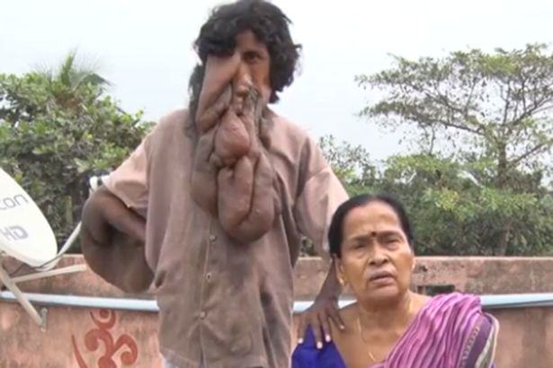 Indian Elephant Man Worshipped As God Needs Miracle Op To Save His Life Indian Trunk Man revered as God 1