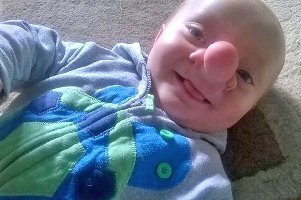PAY Ollie Trezise Toddler Born With His Brain Growing Into His Nose