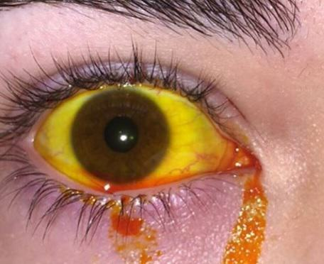 eye 9 NOPE: Terrifying Instagram Account Dedicated To Putting Stuff In Your Eye