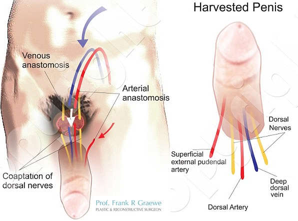South Africa SU Penis Transplant Diagram 2 Wide Wounded War Veteran To Receive First Penis Transplant In The U.S.