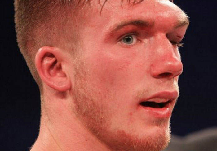 blackwell1 Boxer Nick Blackwell May Be Brought Out Of Coma Today