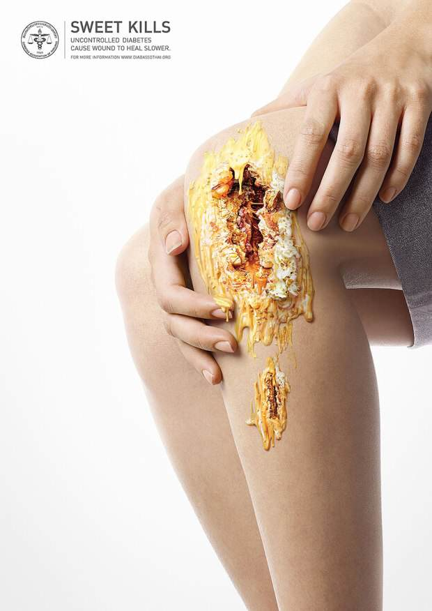 Gruesome Images Show What Too Much Sugar Can Do To You diabetes2