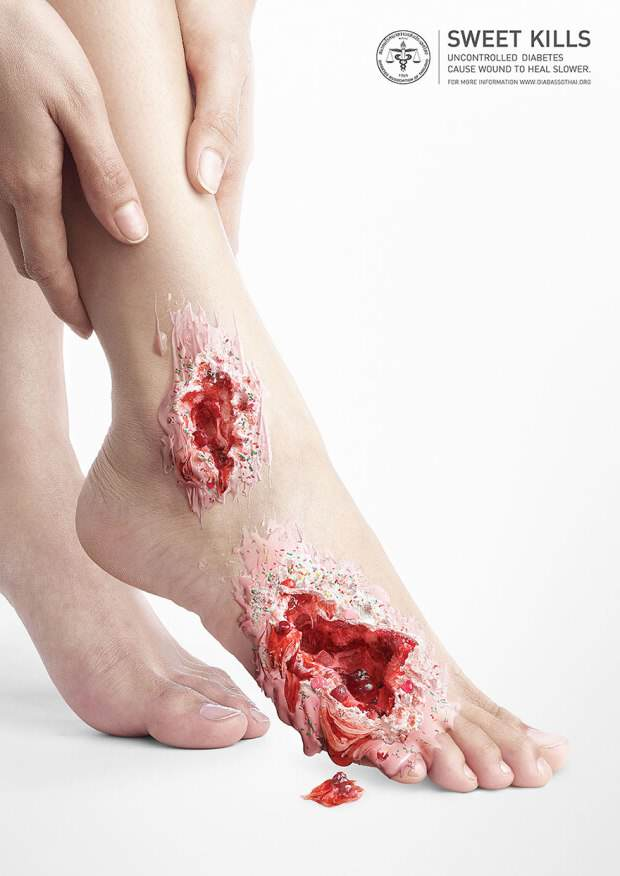 Gruesome Images Show What Too Much Sugar Can Do To You diabetes4