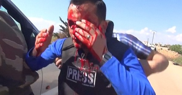 blood Reporter Hit By Shrapnel From Airstrike Live On TV