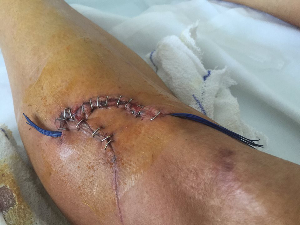 NOPE: Cyclist Cuts Leg Through To Bone In Gruesome Accident shin2