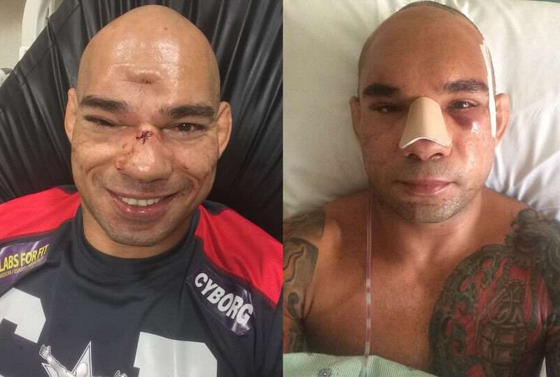 cyborg before after.0 MMA Fighter Reveals Monster Scar Following Horrific Skull Fracture