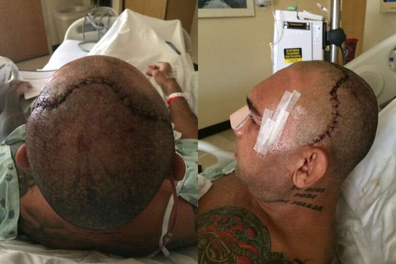 cyborg before after3.0 MMA Fighter Reveals Monster Scar Following Horrific Skull Fracture