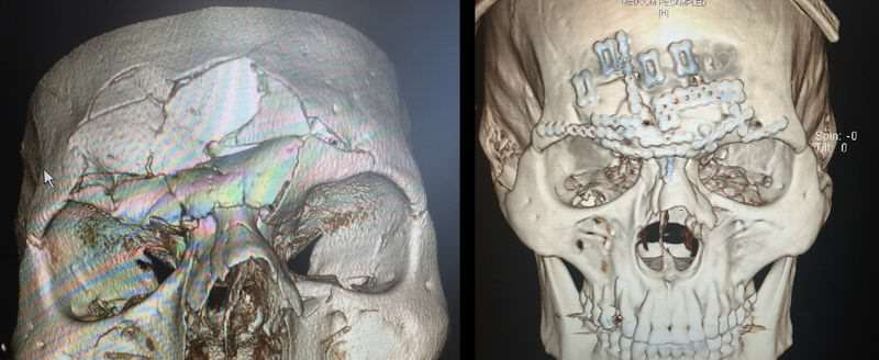 cyborg before after ct.2 MMA Fighter Reveals Monster Scar Following Horrific Skull Fracture