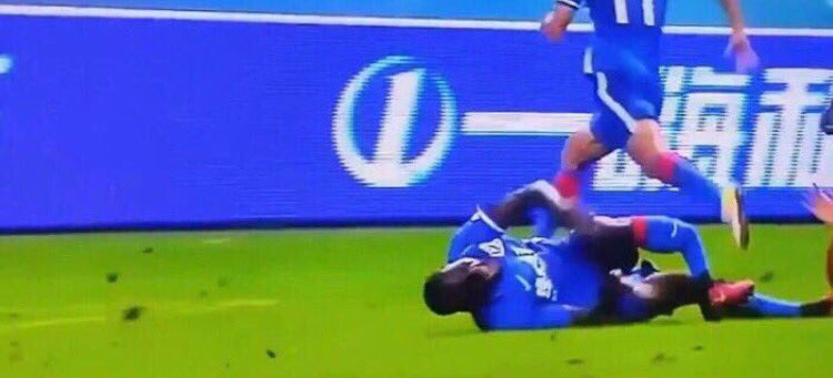 Demba Bas Leg Break Is One Of The Worst Ever demba injury
