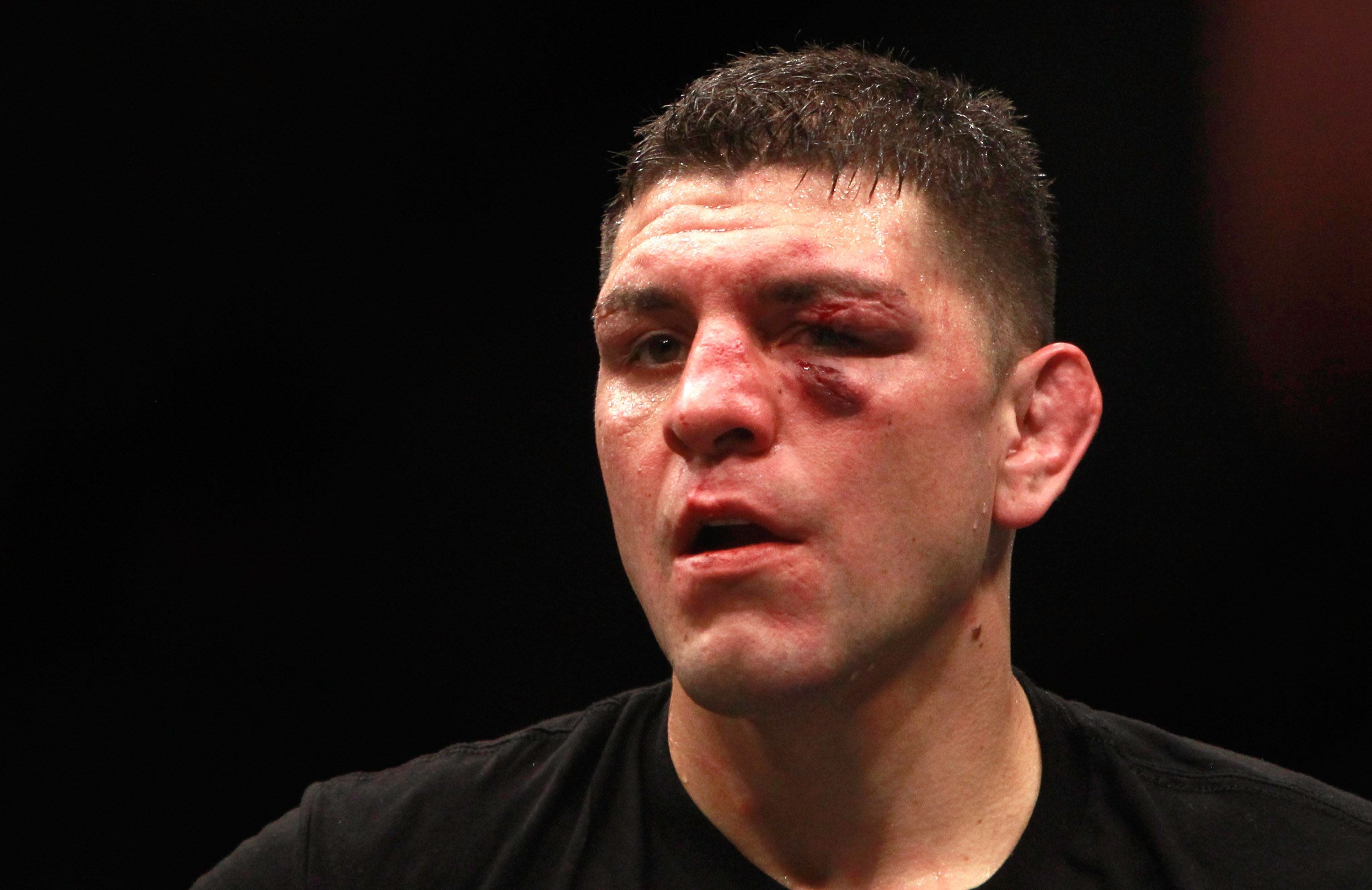 GettyImages 462600456 Nick Diaz Reveals What Happened When Three Guys Tried To Attack Him