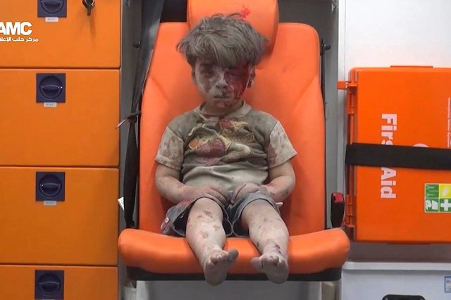 The Media Isnt Showing You These Shocking Images Of Syrian Children PA 28403415 640x426