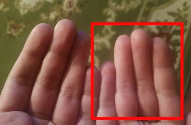 Can You Spot Whats Wrong With This Guys Hands? 14122UNILAD imageoptim Finger 3 640x420