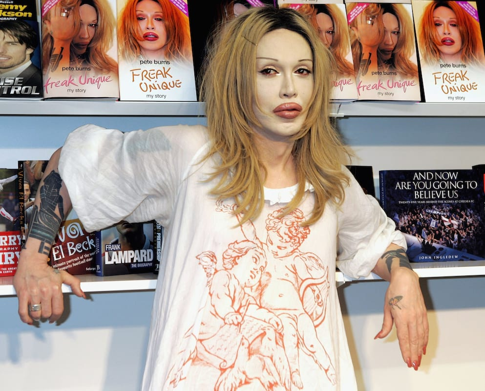 Did Pete Burns Predict His Own Death With This Chilling Final Tweet? 57226UNILAD imageoptim burns1
