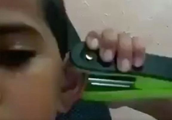 Kid Goes Viral After Using Stapler As Budget Ear Piercing