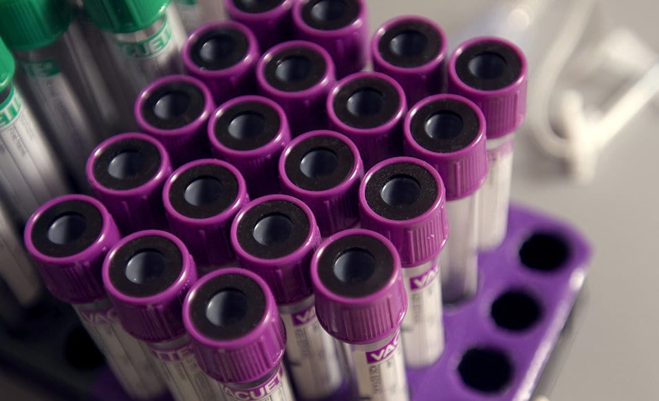 Cancer Could Soon Be Wiped Out Thanks To New Breakthrough Discovery 1326 17099 a tray holding blood filled test tubes pv